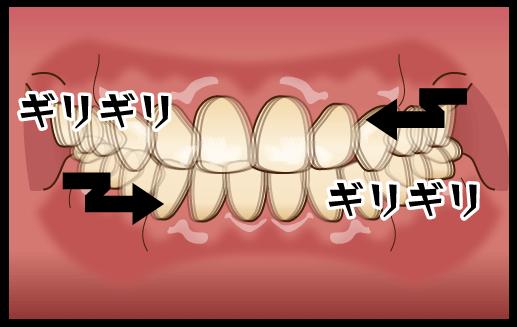 歯ぎしりと噛みしめ(ブラキシズム)について