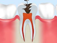 歯髄の除去