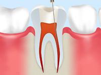 歯根の計測