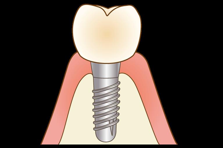人工歯型を製作・装着